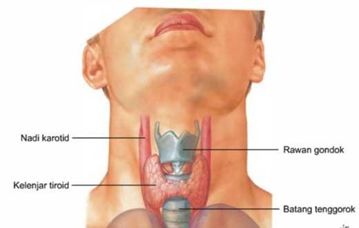 https://celotehbojo.files.wordpress.com/2017/06/d6cf9-kanker-tiroid.jpg